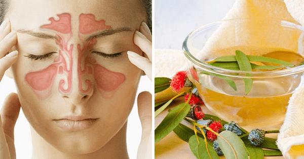 cómo desinflamar senos paranasales consejos de salud
